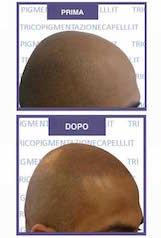 tricopigmentazione-micropigmentazione-capelli-pigmentazione-tatuaggio-soluzione-definitiva-calvizie-cura-permanente-cuoio-capelluto-vicenza-padova-veneto
