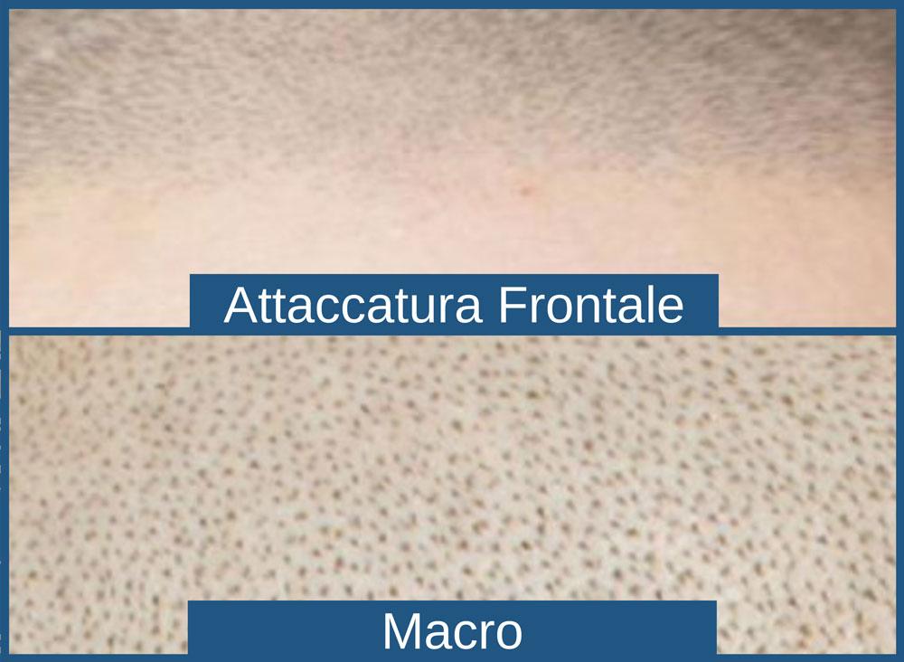 tricopigmentazione-micropigmentazione-capelli-pigmentazione-tatuaggio-soluzione-definitiva-calvizie-cura-permanente-cuoio-capelluto-vicenza-padova-milano-brescia-veneto-lombardia-treviso-venezia-verona-belluno-rovigo-udine-pordenone