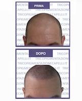 micropigmentazione-capelli-pigmentazione-tricopigmentazione-permanente-soluzione-cura-definitiva-calvizie