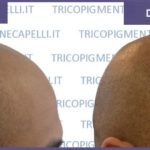 -tricologo-centro-tricologico-bologna