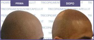 Tricopigmentazione-pigmentazione-dei-capelli-Vicenza-Padova-Veneto-micropigmentazione-tatuaggio-in-testa-cuoio-capelluto-pigmenti-colorati-soluzione-definitiva-calvizie-infoltimento