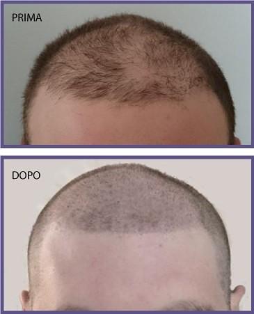Quali vitamine accettare per trattamento di capelli