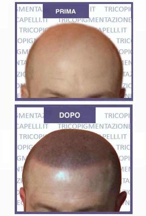 Ragione di perdita e capelli grigi di capelli