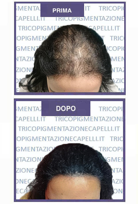 Tricopigmentazione donna e165fa532082