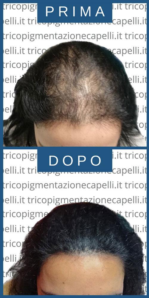 trapianto-capelli-turchia-estero-low-cost-economico-tricopigmentazione-permanente-vicenza-padova-milano-brescia-treviso-venezia-verona-belluno-udine-trento