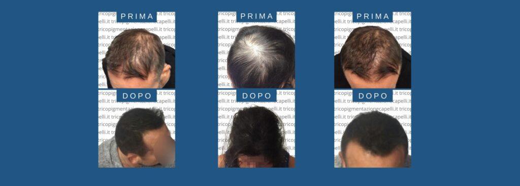 Tricopigmentazione costi prezzi infoltimento capelli non chirurgico come infoltire i capelli vicenza padova milano brescia treviso venezia verona belluno udine trento