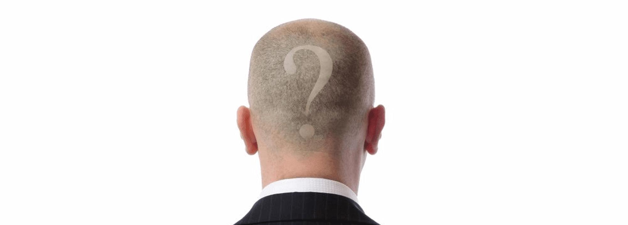 tricopigmentazione-permanente-definitiva-7-domande-per-saperne-di-piu-vicenza-padova-milano-brescia-treviso-venezia-verona-belluno-rovigo-udine-pordenone-trento-bolzano