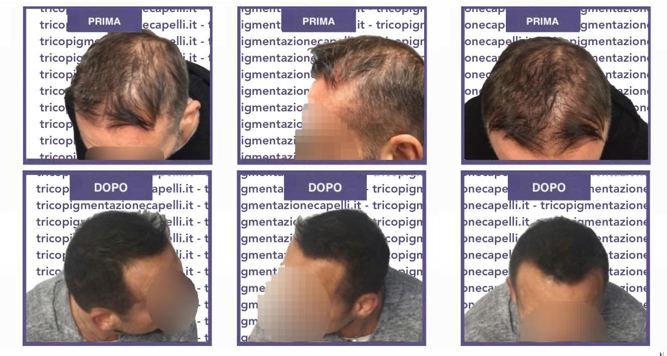 tricopigmentazione-foto-immagini-effetto-infoltimento-capelli-non-chirurgico
