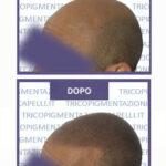 micropigmentazione-capelli-pigmentazione-tricopigmentazione-permanente-soluzione-cura-definitiva-calvizieprima-dopo-1.jpg