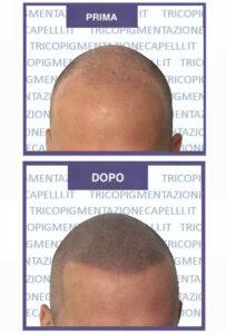 micropigmentazione-capelli-pigmentazione-tricopigmentazione-permanente-soluzione-cura-definitiva-calvizietemplate-prima-dopo-2.jpg
