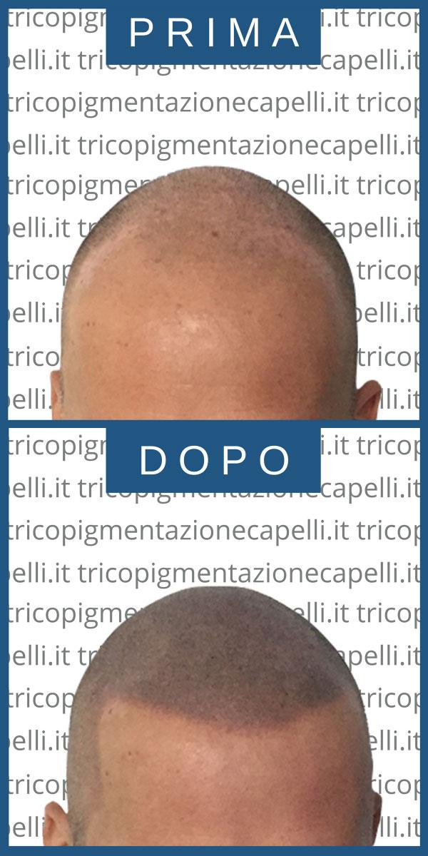 foto-immagini-video-tricopigmentazione-effetto-rasato-infoltimento-capelli-lunghi-uomo-donna-vicenza-padova-milano-brescia-treviso-venezia-verona-belluno-udine-trento-11