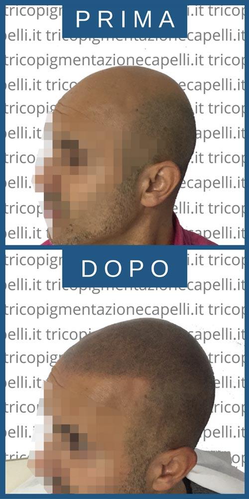 foto-immagini-video-tricopigmentazione-prima-dopo-effetto-rasato-infoltimento-capelli-lunghi-uomo-donna-vicenza-padova-milano-brescia-treviso-venezia-verona-belluno-udine-trento