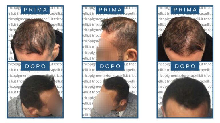 foto-immagini-video-tricopigmentazione-effetto-rasato-infoltimento-capelli-lunghi-uomo-donna-vicenza-padova-milano-brescia-treviso-venezia-verona-belluno-udine-trento