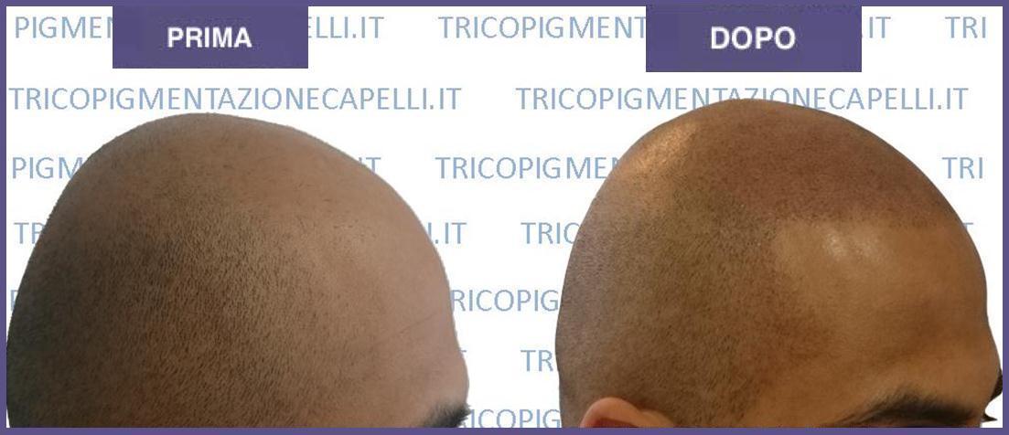 Tricopigmentazione prima e dopo: foto e video effetto ...