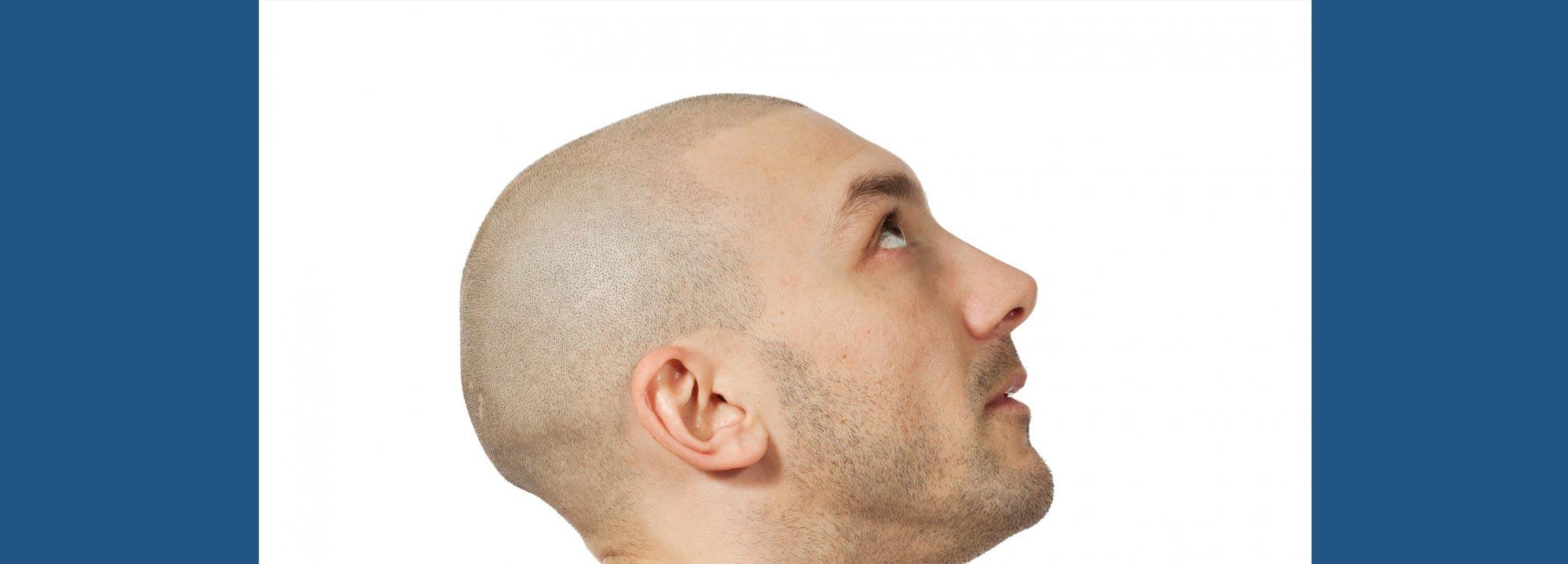 tatuaggio-capelli-cuoio-capelluto-tricopigmentazione-permanente-definitiva-centri-tricologici-vicenza-padova-milano-brescia-treviso-venezia-verona-belluno-udine-trento