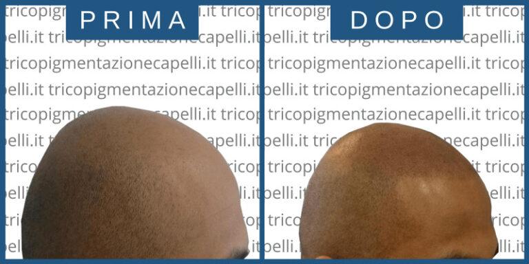 tricologo-centro-tricologico-vicenza-padova-milano-brescia-treviso-venezia-verona-belluno-rovigo-udine-pordenone-trento-bolzano