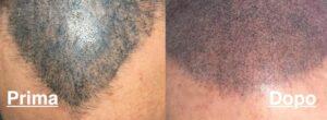 tricopigmentazione-fatta-male-vicenza-padova-milano-brescia-treviso-venezia-verona-belluno-rovigo-udine-pordenone-trento-bolzano