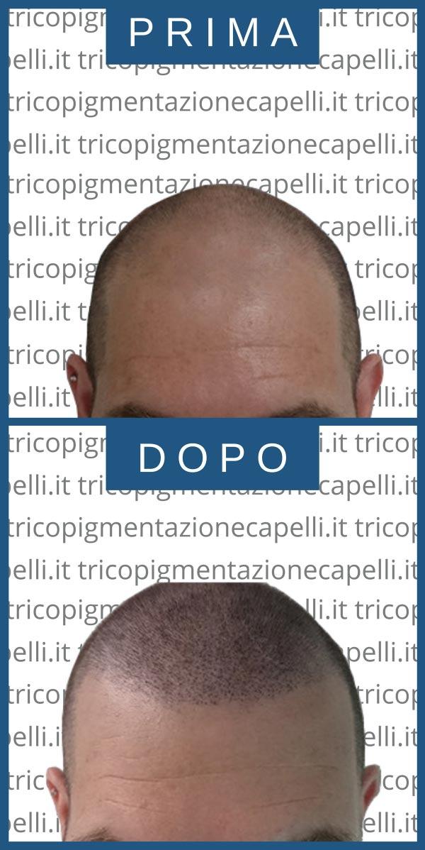tricopigmentazione-permanente-effetto-rasato-definitiva-infoltimento-capelli-lunghi-densita-vicenza-padova-milano-brescia-treviso-venezia-verona-belluno-udine-trento-5