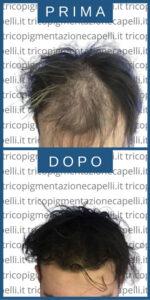 tricopigmentazione-effetto-densita-infoltimento-capelli-lunghi-non-chirurgico-uomo-vicenza-padova-milano-brescia-trento-7