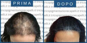 tricopigmentazione-infoltimento-capelli-non-chirurgico-donna-donne-ripigmentazione-stempiatura-nascondere-calvizie-femminile-vicenza-padova-milano-brescia-treviso-venezia-verona-belluno-udine-trento-3