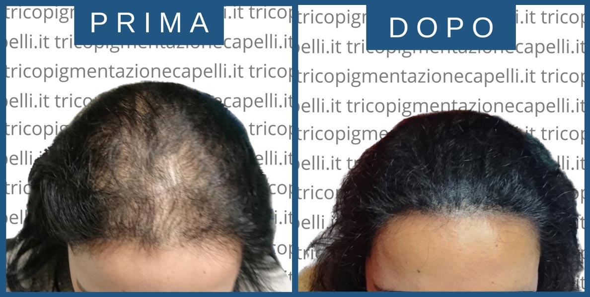 tricopigmentazione-donna-donne-ripigmentazione-stempiatura-nascondere-calvizie-femminile-rimedi-vicenza-padova-milano-brescia-trento-3-1