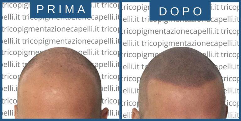 tricopigmentazione-permanente-effetto-rasato-definitiva-infoltimento-capelli-lunghi-densita-vicenza-padova-milano-brescia-treviso-venezia-verona-belluno-udine-trento-prima-dopo-4