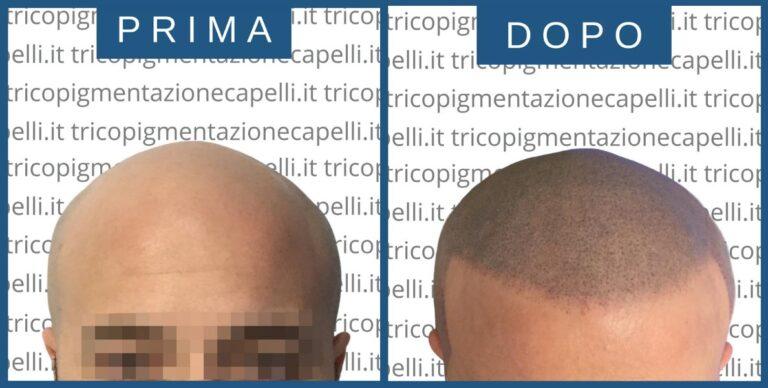 tricopigmentazione-permanente-effetto-rasato-definitiva-infoltimento-capelli-lunghi-densita-vicenza-padova-milano-brescia-treviso-venezia-verona-belluno-udine-trento-prima-dopo-5