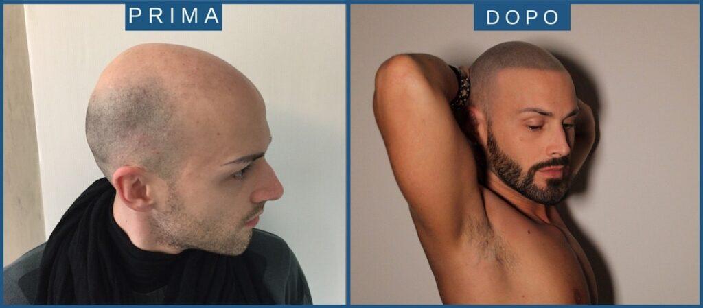 tricopigmentazione-permanente-effetto-rasato-prima-dopo-giacomo