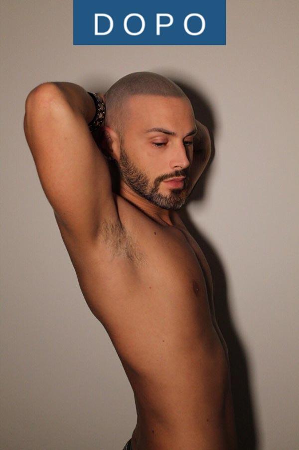 Tricopigmentazione permanente effetto capello rasato giacomo DOPO trattamento HQ